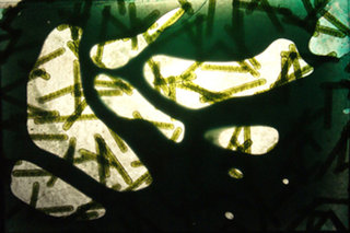 Imperturbable by Esther Santiago García